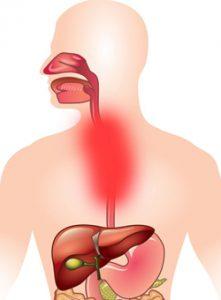 Причины боли в пищеводе
