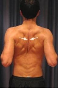 Причины боли в области лопаток на спине