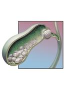 Причины возникновения камней в желчном пузыре