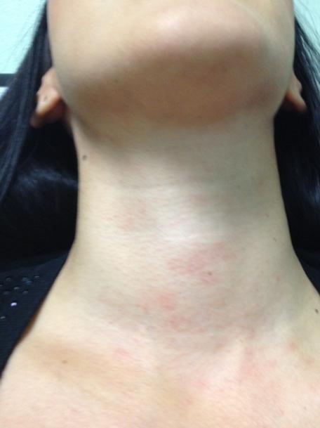 аллергия на шее сзади