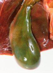 Причины холецистита и лечение